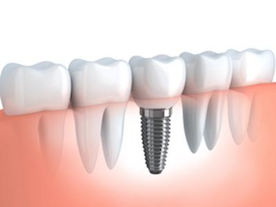 Dental Implants Fairfield NSW