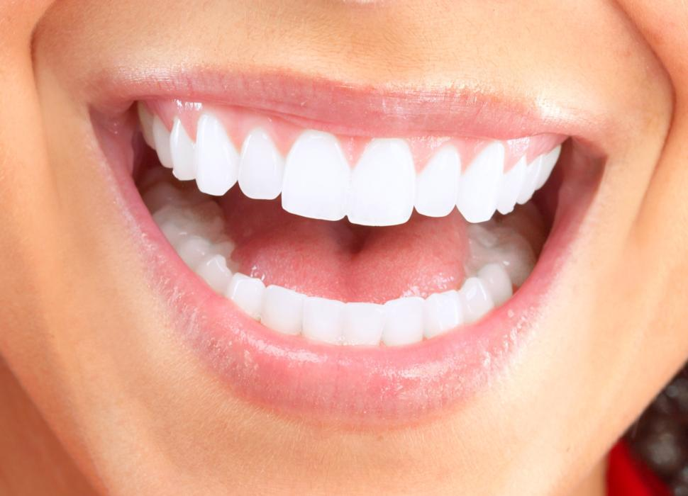 White Teeth | Teeth Whitening Fairfield NSW